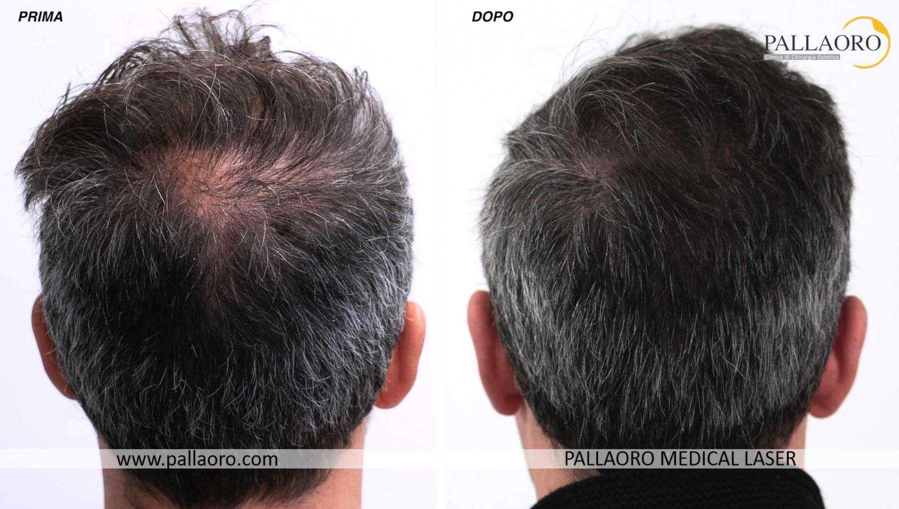 trapianto capelli 2021 08 b davide