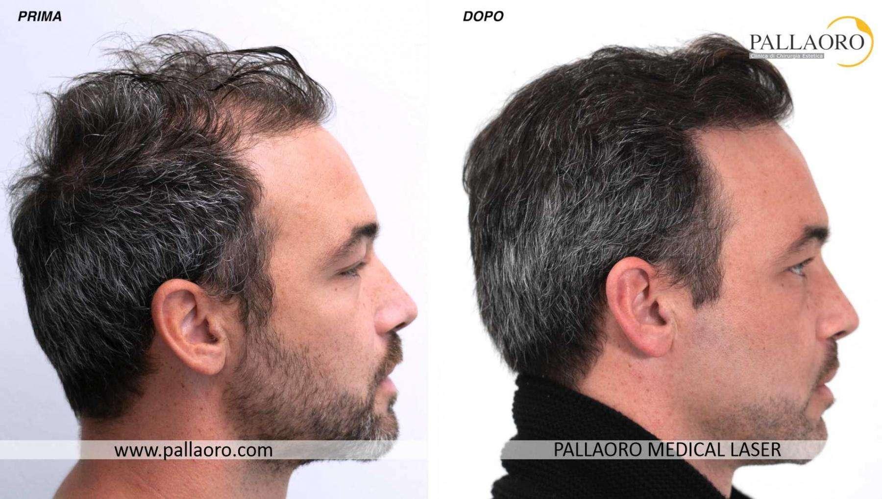 trapianto capelli 2021 08 c davide