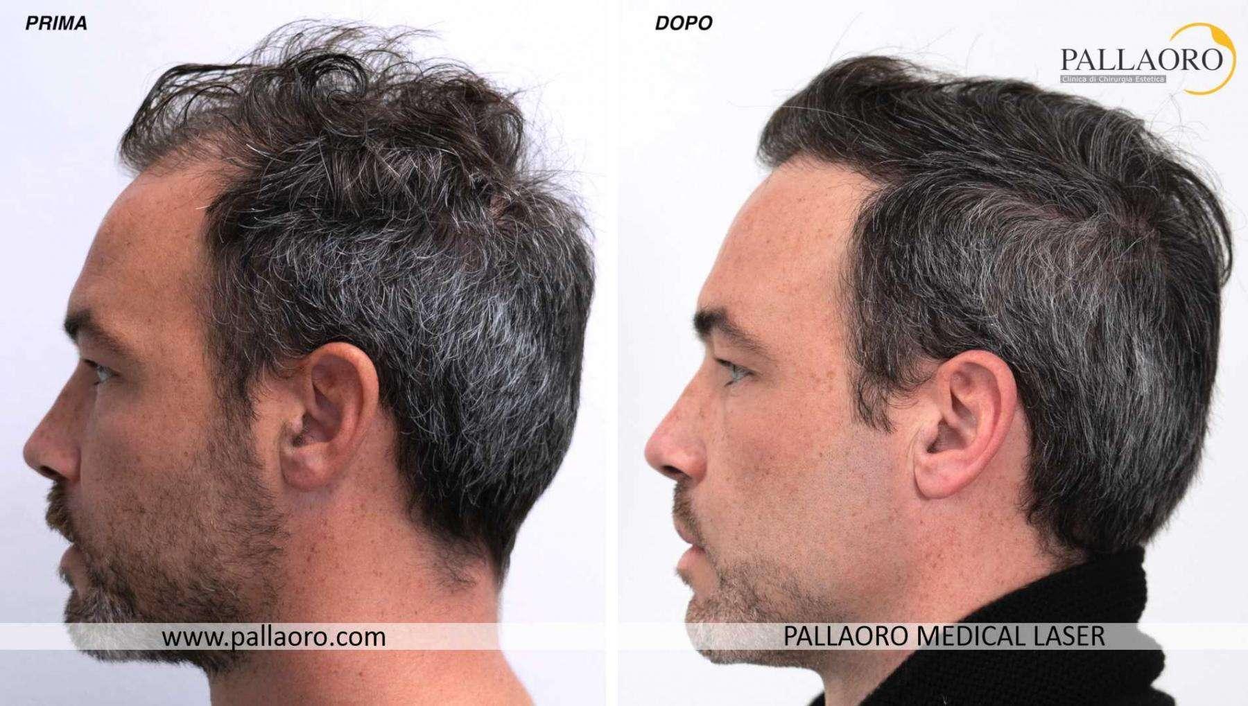 trapianto capelli 2021 08 d davide