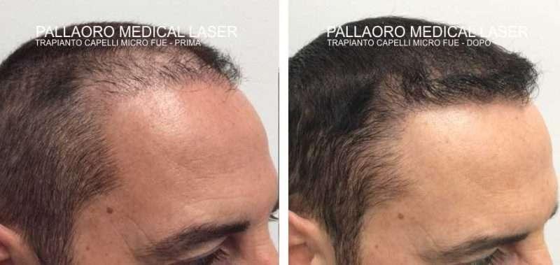 trapianto capelli 3001