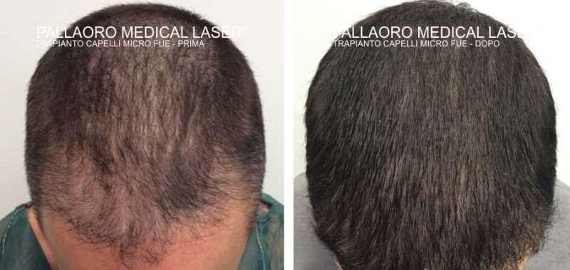 trapianto capelli 3002