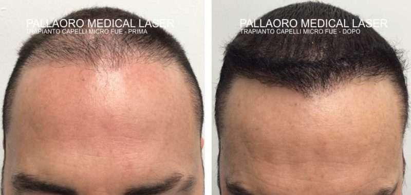 trapianto capelli 3004