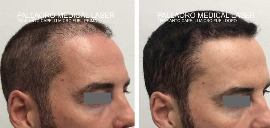 Eliminare la cicatrice da trapianto capelli con la Micro FUE