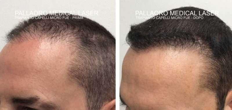 trapianto capelli 3007