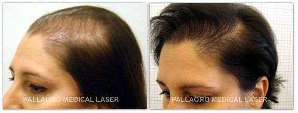 Trapianto capelli: Foto prima e dopo