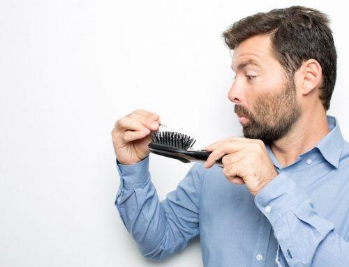 Il trapianto capelli funziona davvero? 10 cose da sapere!