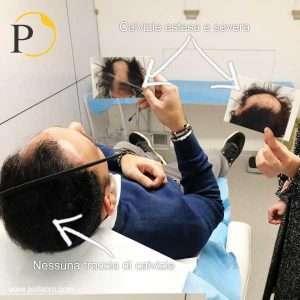 trapianto capelli prima dopo 00005