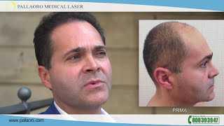 Video trapianto capelli