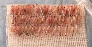 Micro FUE = Micro espianto = Altissima densità follicolare