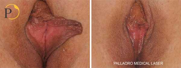 vaginoplastica 1009