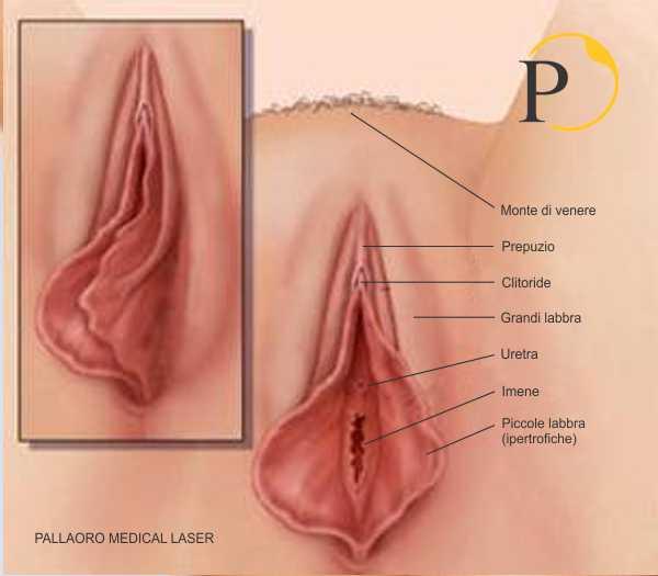 vaginoplastica vagina anatomia
