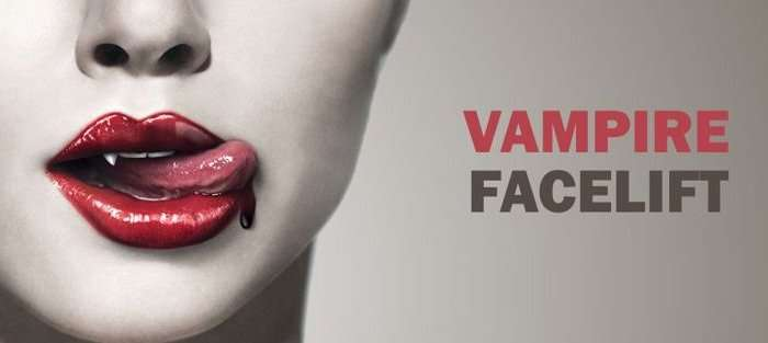 vampire facelift hollywood