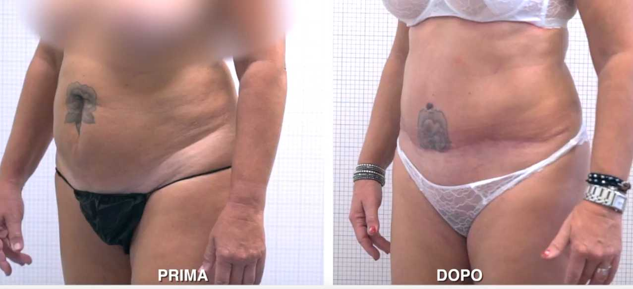 video addominoplastica liposuzione giuliana