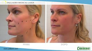 Video chirurgia estetica combinata