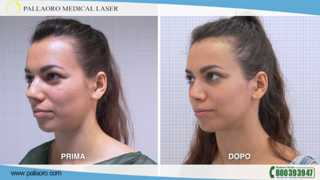 video rinoplastica desiree 03