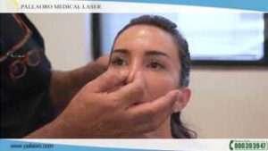 video rinoplastica giulia 03